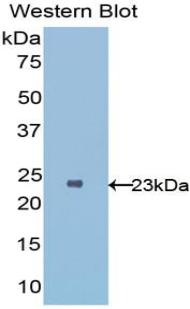 Polyclonal Antibody to Interleukin 1 Receptor Like Protein 1 (IL1RL1)