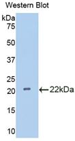 Polyclonal Antibody to Interleukin 18 Binding Protein (IL18BP)