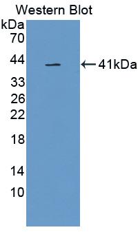 Polyclonal Antibody to Glycosylphosphatidylinositol Specific Phospholipase D1 (GPLD1)