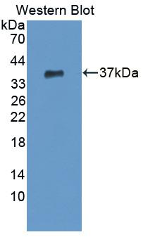 Polyclonal Antibody to Cleavage And Polyadenylation Specific Factor 1 (CPSF1)
