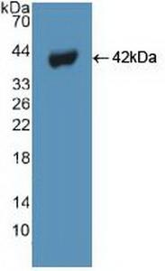 Polyclonal Antibody to Beclin 1 (BECN1)