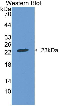 Polyclonal Antibody to Aconitase 1 (ACO1)