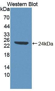 Polyclonal Antibody to Abl Interactor 1 (ABI1)