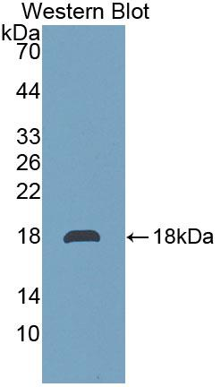Polyclonal Antibody to Transmembrane Protein 27 (TMEM27)