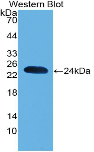 Polyclonal Antibody to Parkinson Disease Protein 7 (PARK7)
