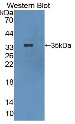 Polyclonal Antibody to Hermansky Pudlak Syndrome Protein 1 (HPS1)