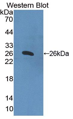 Polyclonal Antibody to Hermansky Pudlak Syndrome Protein 4 (HPS4)
