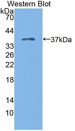 Polyclonal Antibody to Kazal Type Serine Protease Inhibitor Domain Containing Protein 1 (KAZALD1)