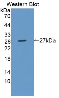 Polyclonal Antibody to UL16 Binding Brotein 2 (ULBP2)