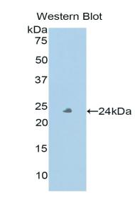 Polyclonal Antibody to Peroxidasin Homolog (PXDN)