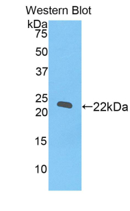 Polyclonal Antibody to RNA Exonuclease 2 Homolog (REXO2)