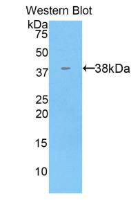 Polyclonal Antibody to Keratin 71 (KRT71)
