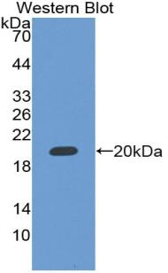 Polyclonal Antibody to RNA Binding Motif Protein 20 (RBM20)