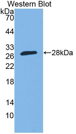 Polyclonal Antibody to Sp140 Nuclear Body Protein (SP140)