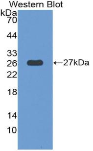 Polyclonal Antibody to Thrombospondin Type I Domain Containing Protein 7A (THSD7A)