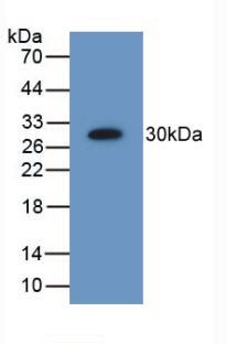 Polyclonal Antibody to Proteasome 26S Subunit, Non ATPase 9 (PSMD9)
