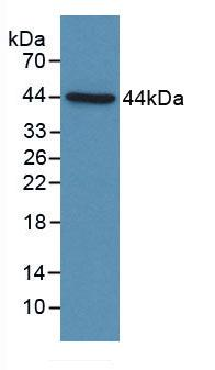 Polyclonal Antibody to Complement Component 4d (C4d)