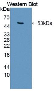 Polyclonal Antibody to Keratin 25 (KRT25)
