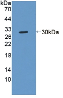 Polyclonal Antibody to Notch2 N-Terminal Like Protein (NOTCH2NL)