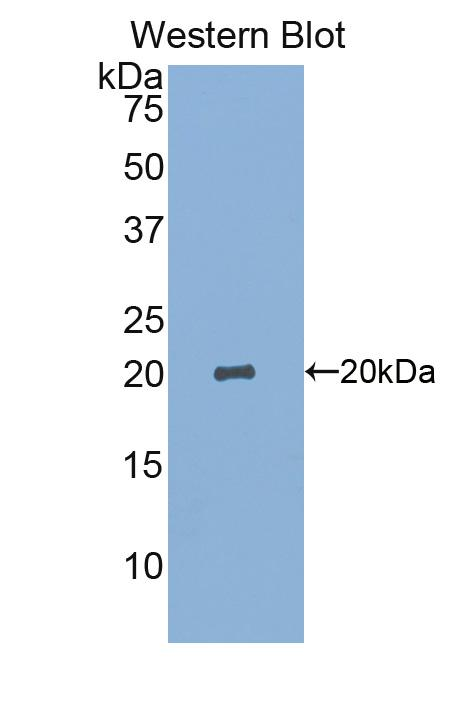 Polyclonal Antibody to Sialic Acid Binding Ig Like Lectin 14 (SIGLEC14)