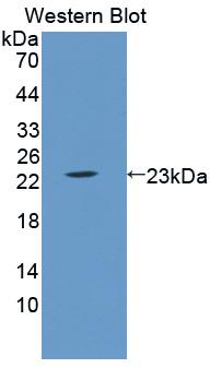 Polyclonal Antibody to Lipocalin 5 (LCN5)