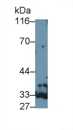 Polyclonal Antibody to Galectin 9B (GAL9B)