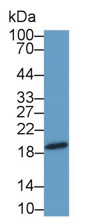 Polyclonal Antibody to Chromosome 1 Open Reading Frame 194 (C1orf194)