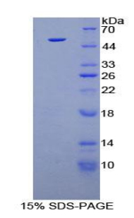 Recombinant Fibroblast Growth Factor 1, Acidic (FGF1)