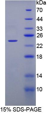 Recombinant Fibroblast Growth Factor 1, Acidic (FGF1)