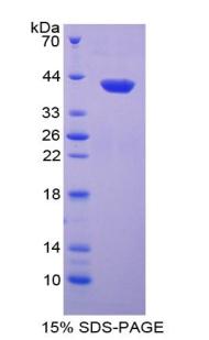 Recombinant Neutrophil Activating Protein 3 (NAP3)