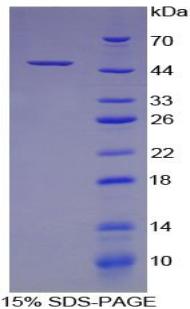 Recombinant Colony Stimulating Factor 2, Granulocyte Macrophage (GM-CSF)