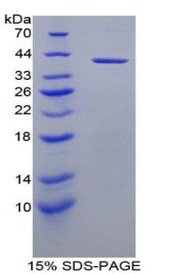 Recombinant Insulin Like Growth Factor 1 (IGF1)