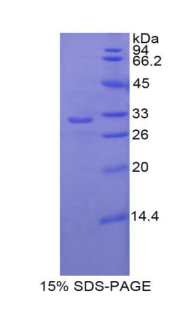 Recombinant Insulin Like Growth Factor Binding Protein 1 (IGFBP1)