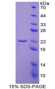 Recombinant Interleukin 10 (IL10)