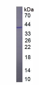 Recombinant Interleukin 12B (IL12B)