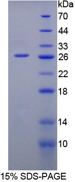 Recombinant Interleukin 12A (IL12A)