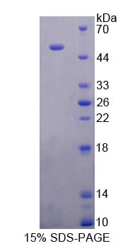Recombinant Glial Fibrillary Acidic Protein (GFAP)