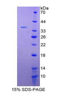 Recombinant Interleukin 4 (IL4)