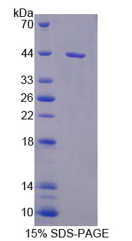 Recombinant Interleukin 5 (IL5)