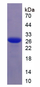 Recombinant Interleukin 6 (IL6)