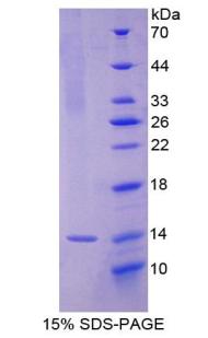 Recombinant Interleukin 8 (IL8)