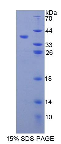 Recombinant Matrix Metalloproteinase 10 (MMP10)