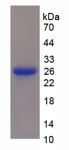 Recombinant Osteoprotegerin (OPG)