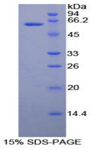 Recombinant Ribonuclease T2 (RNASET2)