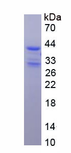 Recombinant Stromal Cell Derived Factor 1 (SDF1)