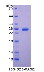 Recombinant Tissue Inhibitors Of Metalloproteinase 3 (TIMP3)