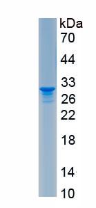 Recombinant Carcinoembryonic Antigen (CEA)