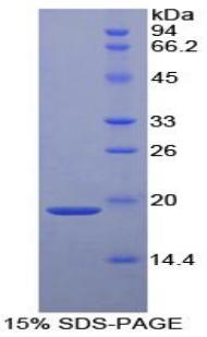 Recombinant Alpha 2-Antiplasmin (a2PI)