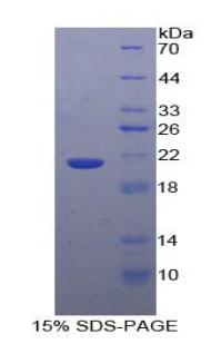 Recombinant Glucosidase Alpha, Acid (GaA)