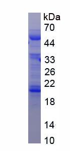 Recombinant Alpha-2-Heremans Schmid Glycoprotein (AHSG)